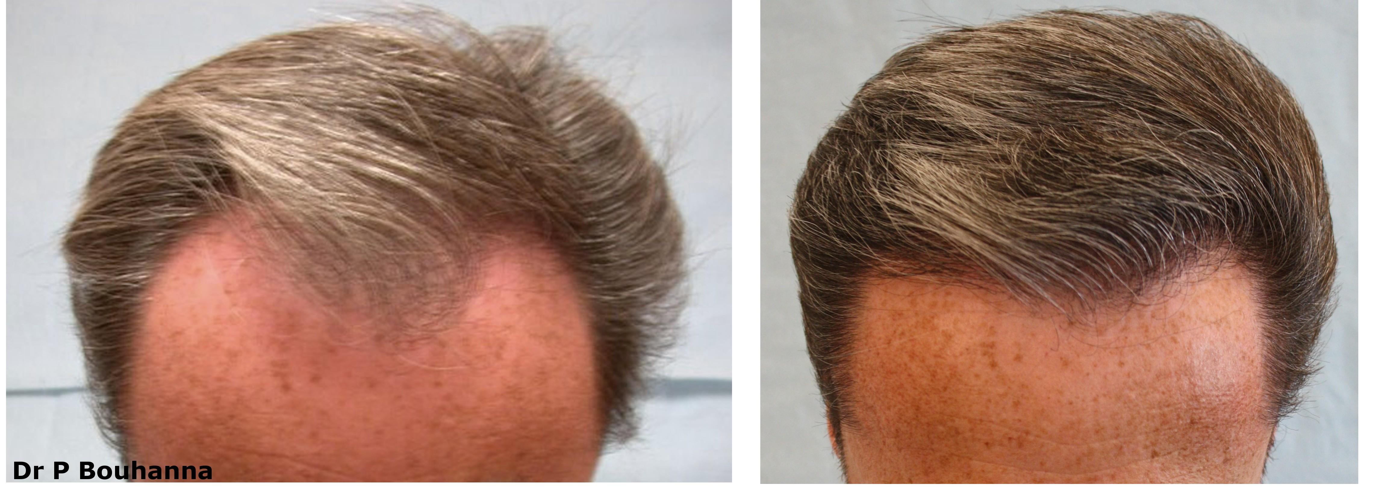 Perte de cheveux sur les tempes homme