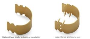 implant earfold