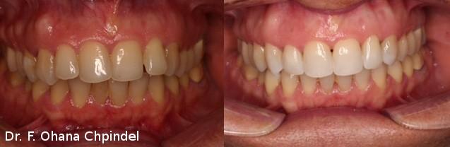 dents-invisalign-femme-18-mois