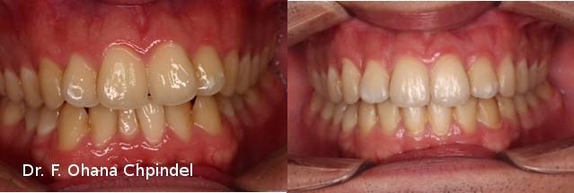 dents-lingual-homme-21-mois