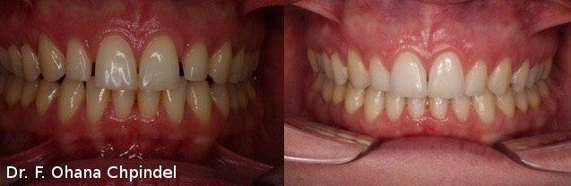 dents-multibagues-femme-12-mois