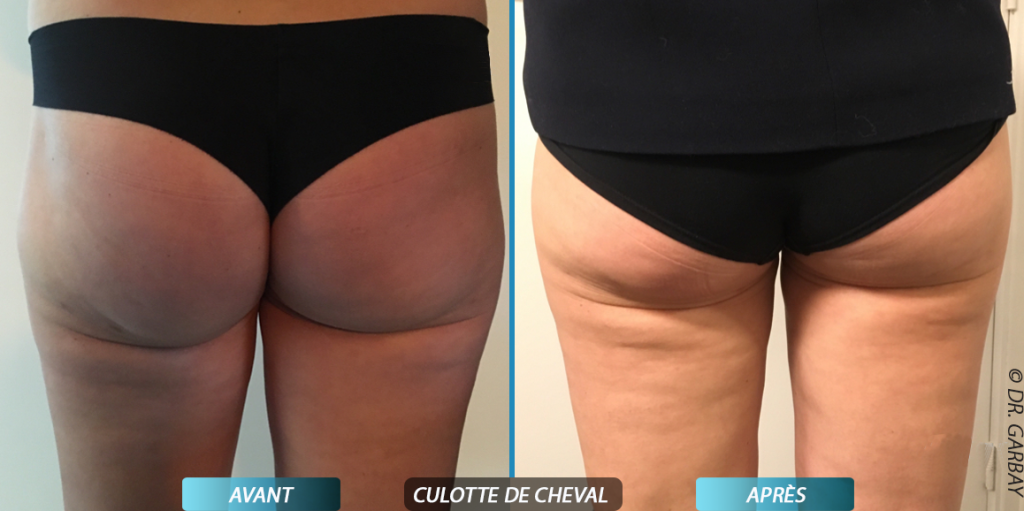 Le match m decine esth tique chirurgie for Liposuccion interieur cuisses photos