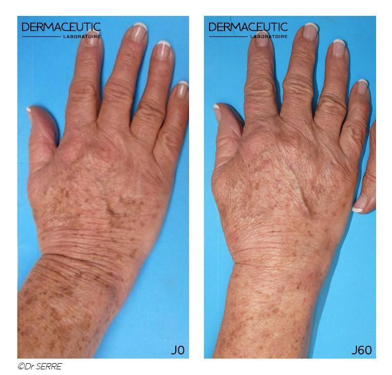 peeling taches mains avant/après
