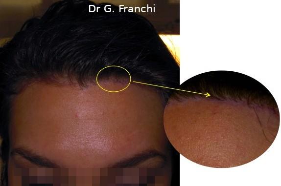chirurgie d'abaissement du front cicatrice invisible