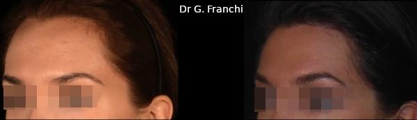chirurgie d'abaissement du front