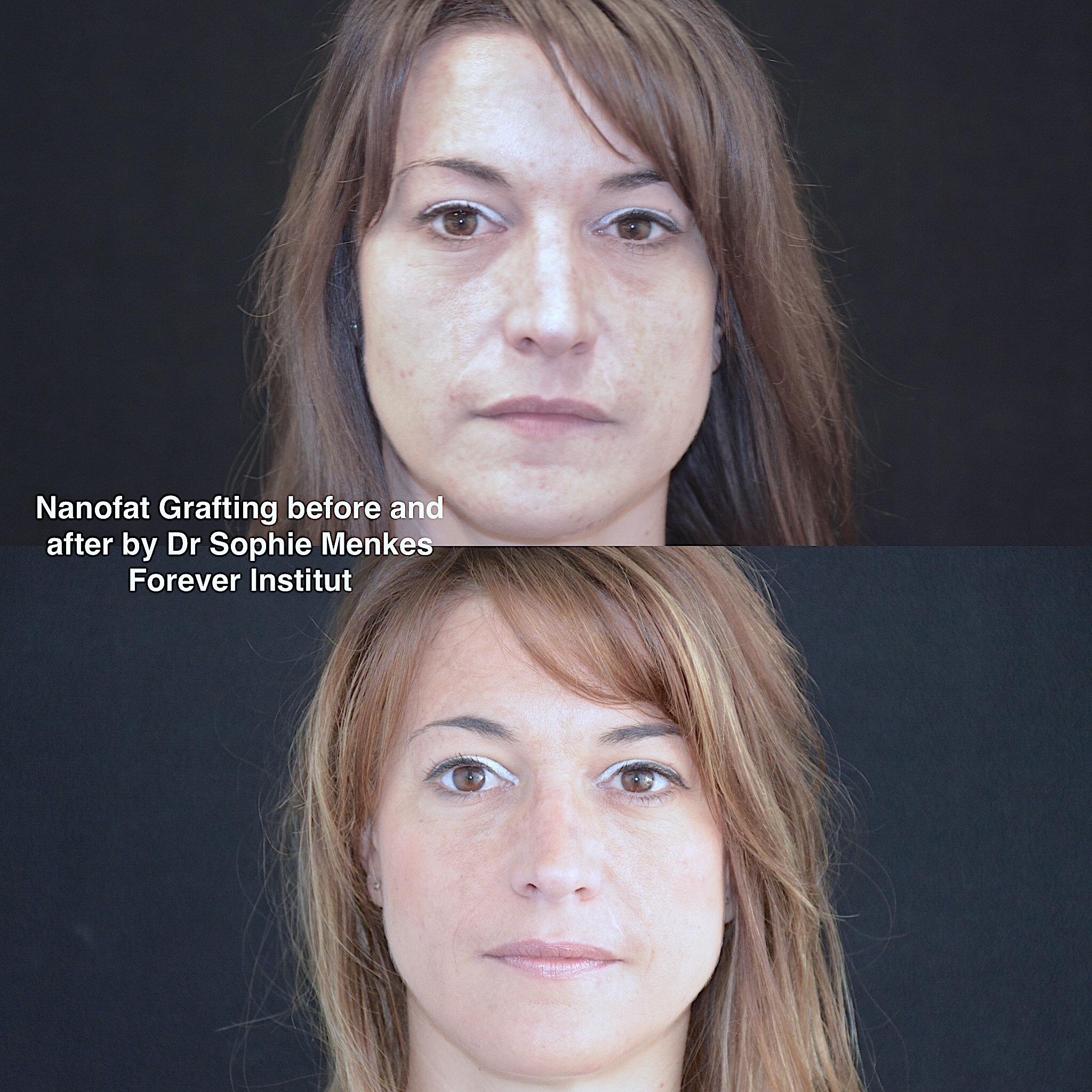Rajeunissement aspect de la peau avec Nanofat