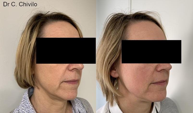 Skinboosters avant/après