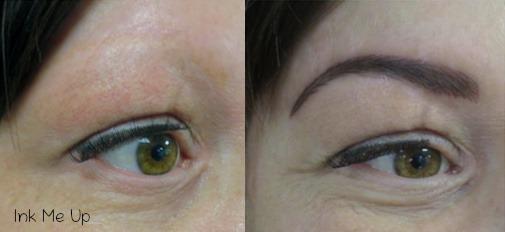 Dermopigmentation réparatrice sur alopécie des sourcils