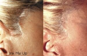 Dermopigmentation réparatrice cicatrice de lifting