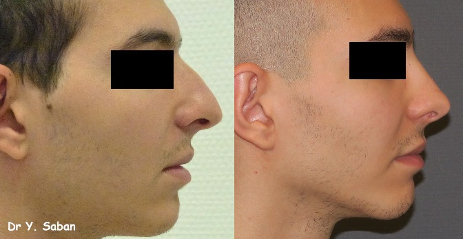 Le boum de la rhinoplastie conservatrice ou comment refaire son nez sans tout casser